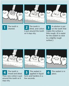 72 Best West Chester Dental Arts Home Page Images In 2016