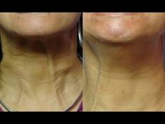 Plump Up And Strengthen Thin Neck With Exercise: Build And Lift Neck And...
