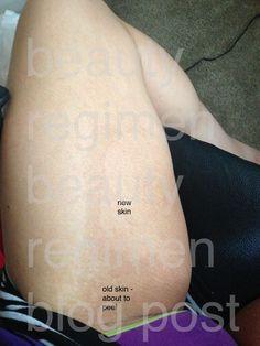 how to lighten dark skin between thighs: