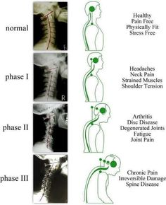 Neck And Shoulder Pain, Neck And Back Pain, Arthritis, Clinique Chiropratique, Dorn Therapie, Neck Exercises, Scoliosis Exercises, Neck Stretches, Spine Health