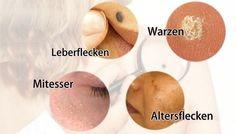 Häufige Hautunreinheiten wie Leberflecken, Warzen, Mitesser und Altersflecken können nicht nur das Aussehen deiner Haut schädigen, sie können auch sehr teuer zu bewältigen sein. Hier ist eine umfassende Anleitung zur natürlichen Behandlung von diesen Hautbedingungen. WARZEN Warzen werden oft durch den humanpathogene Papillomvirus (HPV) verursacht und können Menschen auf vielfältige Weise beeinflussen. Es gibt mehr