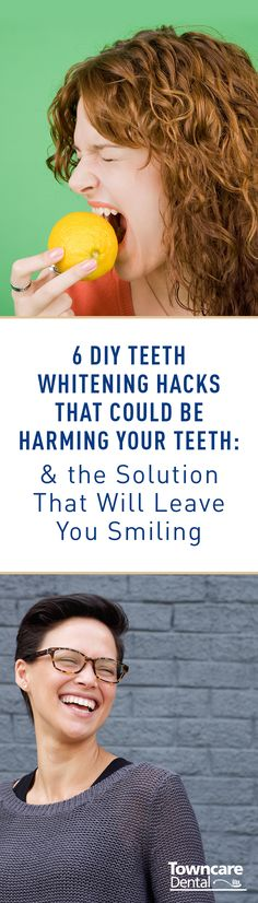 """When it comes to your dental health, you shouldn't always trust the tips you read on the Internet. These six do-it-yourself whitening """"solutions"""" will make you think twice about what you put on your teeth. Plus, learn about the safe, effective and professional teeth whitening option that won't break the bank!"""