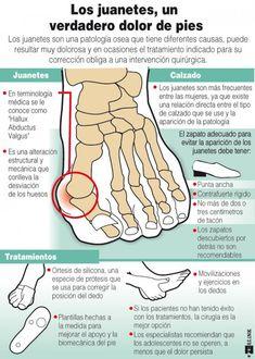 Los juanetes #infografia