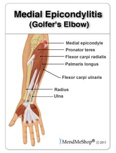 Golfer's elbow is a form of chronic degeneration of the tendon called tendinopathy. Swelling and tenderness on and around the tendons that attach to the small bony part on the inside of your elbow (medial epicondyle). Tendinitis Elbow, Golfers Elbow Treatment, Cubital Tunnel Syndrome, Elbow Exercises, Arm Sling, Elbow Pain, Sports Therapy, Tennis Elbow, Triceps Workout