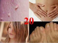 Gyógyítja a körömgombát, a sebet, a fülgyulladást – A ricinusolaj közel 20 gyógyhatása, amiről nem is tudsz! Castor Oil, Health, Health Care, Salud