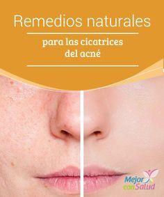 Remedios naturales para las cicatrices del acné   Las cicatrices de acné son antiestéticas y cuestan mucho para hacerlas desaparecer, te aportamos hoy unos sencillos remedios para que puedas resolverlas poco a poco !No te lo pierdas!