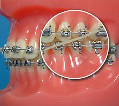 Orthodontist Spokane: Rubber Bands  orthodontistspokane.com