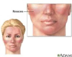 TheraLife: How to manage and treat Ocular Rosacea