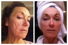 This is age 64 Redefined. Her results are absolutely stunning! Using the Rodan + Fields Redefine Regimen and the AMP MD roller.