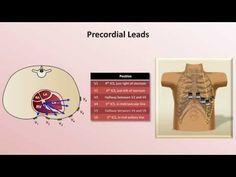 Intro to EKG Interpretation - EKG Leads 998ad4472c
