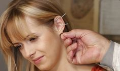 Can acupuncture in your ear help you lose weight? Treatment can help overweight slim down within just eight weeks