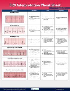 Use this EKG interpretation cheat sheet that summarizes all heart arrhythmias in an easy-to-understand fashion.  Cardiac Nursing, Pharmacology Nursing, Nursing School Notes, Medical School, Rn School, School Tips, Nursing Cheat Sheet, Nursing Study Tips, Ekg Interpretation