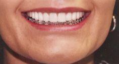 My diamonds increase my smile value😁!