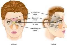 Paranasal sinuses - anatomy picture