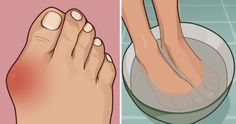 Suffer From Embarrassing Bunions?Soak Your Feet In This Bath For Soothing Relief