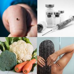 Lyme Disease Treatment (Natural vs. Conventional)   Prevention Tips