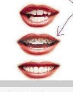 Orthodontics, Miami beach and Miami on Pinterest