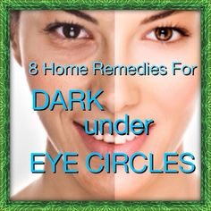 8 Home Remedies To Get Rid Of Dark Under Eye Circles!!!!