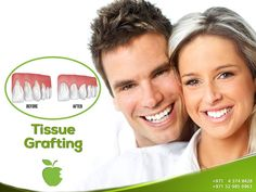 Tissue Grafting    Soft Tissue Grafting is a common procedure that is intended to recreate your gum line and prevent further deterioration of the gums, while enhancing the appearance of your smile.    http://americanmdcenter.com/services/tissue-grafting/  ----------------------  Ask now!  Call us NOW  +971 4 374 8428  #AMDC #Dental_clinic #Dentist_Dubai #Veneer #Dental_Implants #Invisalign #braces #teethwhitening #ZoomWhitening #Mydubai #Dubai #UAE #Quality #Topdentist #love #Smile #happy…