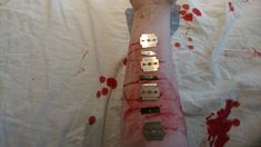 Blades self harm gonna get new scars relapse