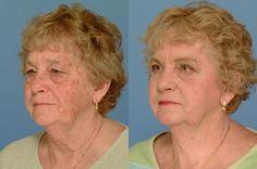 Pred a po ošetreni