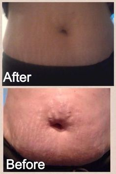 One of my actual clients results!This is after only ONE wrap!!! www.blessedgingerwraps.myitworks.com TRY IT RISK FREE!