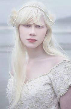 17 mais belas pessoas albinas do mundo                              …
