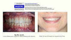 Casi clinici ortodontici Affollamento dentale http://www.studiodentisticobalestro.com/2017/07/affollamento-dentale.html