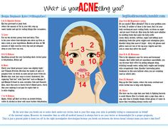 What is Your Acne Telling You? infographic