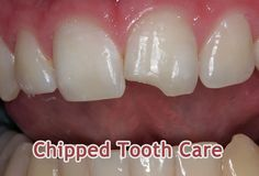 CHIPPED TOOTH CARE TIPS