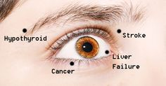 Here are eight common eye conditions and what they mean in terms of your health.