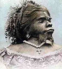 Julia Pastrana: The True Story of the Hybrid Bear Woman. - Julia Pastrana was born in 1834. She was believed to have been born within a small tribe of Native Americans on the western slopes of Mexico. Not a lot is known about her early childhood, but she first appeared in public, in 1854, she was brought out and exhibited at the Gothic Hall on Broadway. The name she was billed under was a cruel and sad insult to her condition. Known as the marvelous hybrid or Bear Woman, others called her The Ug