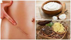 De 7 beste rettsmidler for å redusere arrene naturlig Lighten Scars, Belleza Natural, Natural Treatments, Peanut Butter, Beauty Hacks, Hair Beauty, Diet, Healthy, Desserts