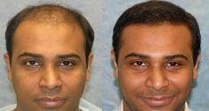 #Hair #transplant is really one of the best options ever. This is because it would help you get a natural look