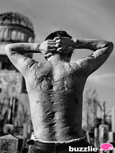 A-Bomb scars---A Hiroshima A-Bomb victim shows his scars, 6 years after America dropped the bomb on the Japanese city. America would drop a second bomb on Nagasaki just 3 days later.