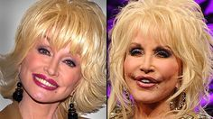 Dolly-  It is not so gradual when you look at now vs. then!