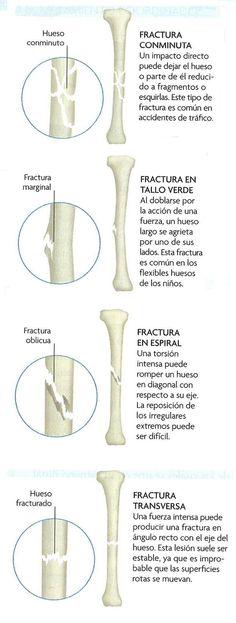 Fracturas Oseas   Reparación Ósea ~ Ciencias de la salud #Traumatología