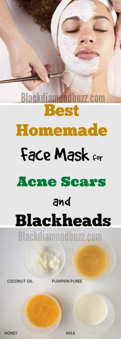 DIY Face Mask for Acne | 7 Best Homemade Face Mask for Acne Scars and Blackheads #acne #blackheads