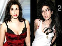 before-after-amy-winehouse-normal-not