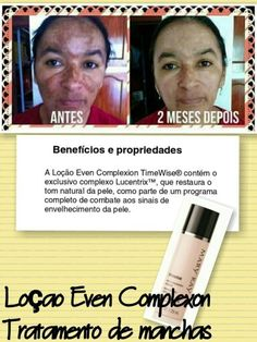 Antes e depois com Loção Even Complexion Timewise da Mary Kay Rainbow Costumes, Mary Kay Brasil, Mary Kay Ash, Homemade Skin Care, Contour Makeup, Spa Day, Make Up, Flyers, Beauty