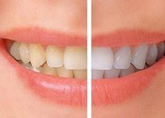 I tuoi denti sono gialli? Ecco come farli tornare bianchi