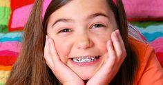 Niềng răng trẻ em là dịch vụ được khá nhiều phụ huynh...
