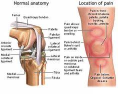 Chondromalacia patella + high heels   Patella Femoral Syndrome (Knee Cap Pain)