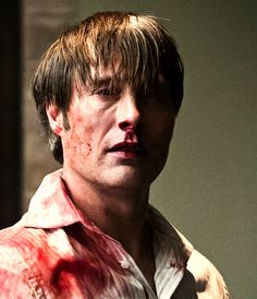 Poor Hannibal......not one of his best days.