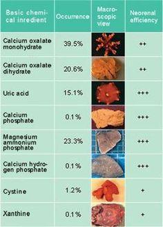Diferentes tipos de cálculos renales