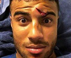 No apto para sensibles: La escalofriante herida de un futbolista del Barça