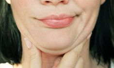 Double chins or neck waddles are the result of excess fat or hanging loose skin or both. It is very important to make this distinction as it changes what will be the most effective treatment? Bursitis Hip, Loose Skin, Chubby Cheeks, Double Chin, Sagging Skin, How To Be Likeable, Normal Skin, Acne Skin, Phobias