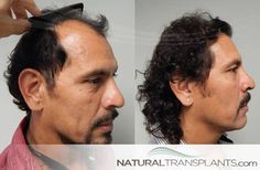 Male Pattern Baldness Treatment | Hair Transplant Before and After