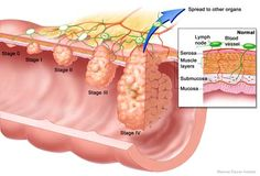 A type of cancer ~ Five stages  then spreads to other organs