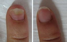 # A caround girl - How to get rid of the fungus and get rid of it . - # Get rid of # . Sport Diet, Nail Fungus, Tea Tree Oil, How To Get Rid, Toe Nails, Fungi, Deodorant, Nail Care, Cleaning Tips